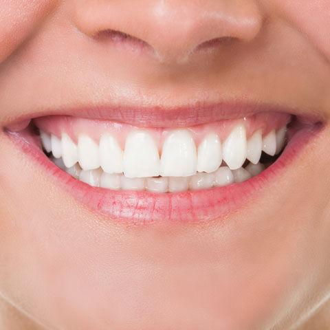 bleka tänder laser